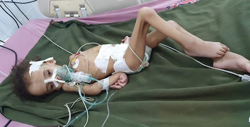 The humanitarian crisis in Yemen is the worst I've ever seen it